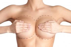 Krūtų gydymas