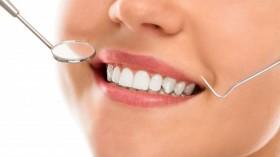 Estetinis plombavimas - naujo dantų gyvenimo pradžia
